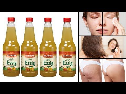 7 überraschende Vorteile von Apfelessig für deine Schönheit!