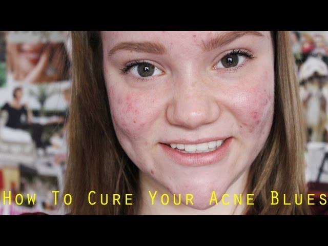 My-acne-story-how-to