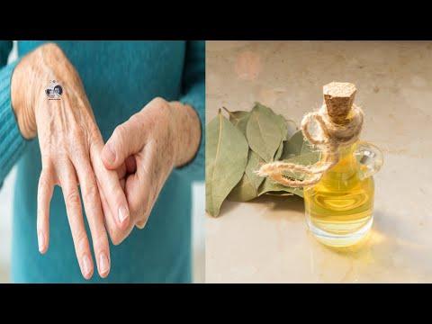 Tratamentul ciorurilor varicoase varicoase