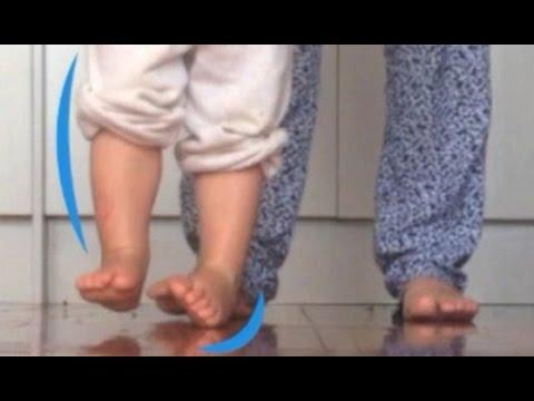 Koślawe zniekształcenie palców dziecka