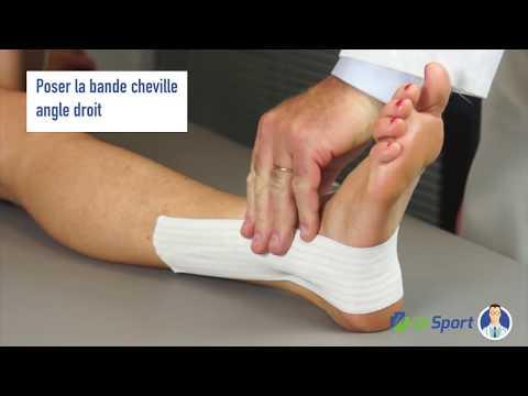 La crème des astérisques vasculeux les pieds