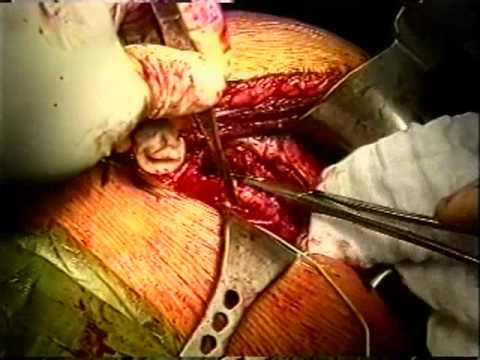 Curvatura di spina dorsale di disack