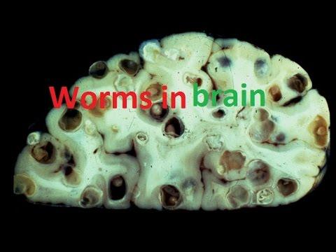 Iodine pumapatay parasito