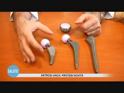 Novità sulle protesi all'anca