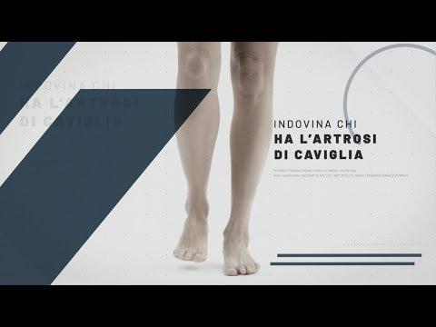 Trattamento del ginocchio DOA