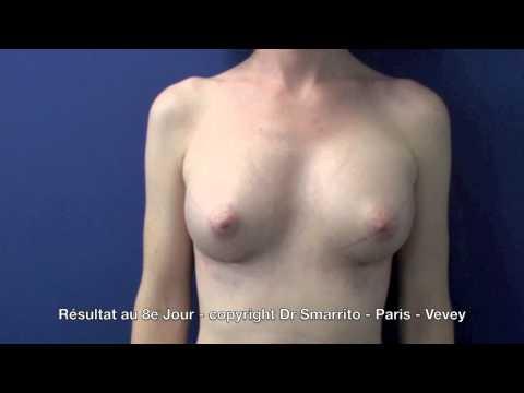 La poitrine grand et les tétines très petit