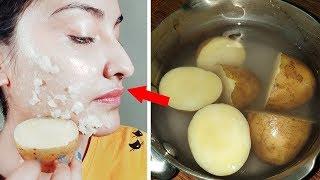 Permanent Skin Whitening with Boil Potato | Get Milky Whiten Skin (100% Result)
