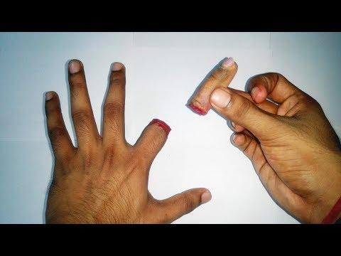 Die Nägel bei atopitscheskom die Hautentzündung des Fotos