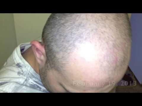 Remedium na porost włosów dla mężczyzn kupować
