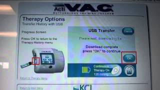KCI Wound Vac Video