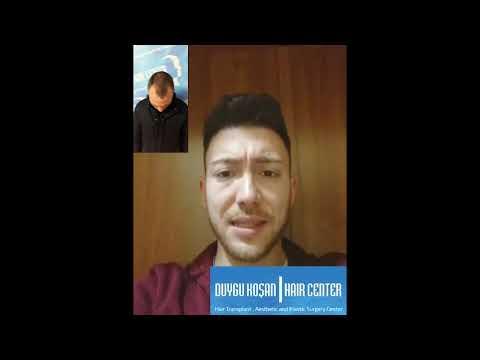 Foschia micro il dispositivo per trattamento di capelli
