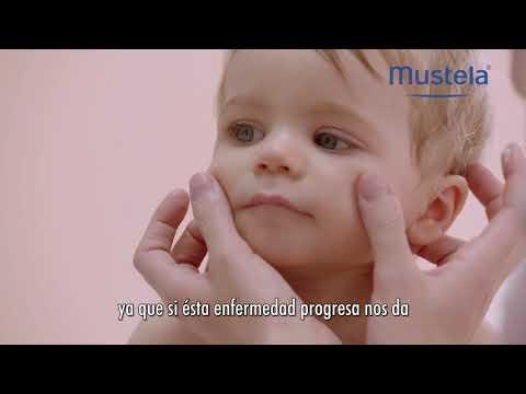 El tratamiento de la psoriasis las cremas