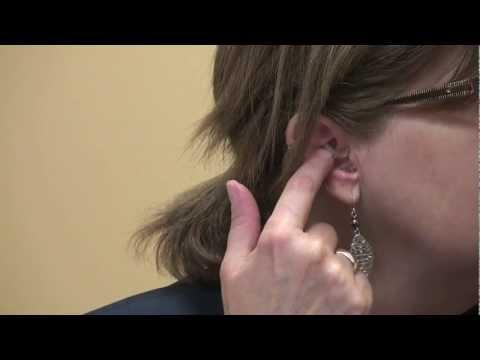 Atopitchesky la dermatite le menton