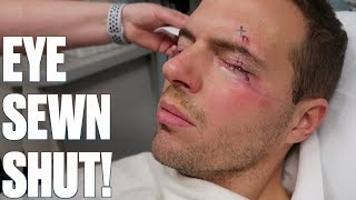 EYE SEWN SHUT AFTER SURGERY | CRAZY STITCHES AFTER SURGERY TO REMOVE MASS UNDER MY EYE