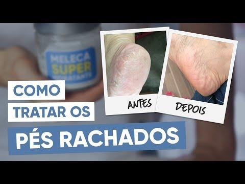 Imagem ilustrativa do vídeo: Tratamento caseiro para PÉS RACHADOS