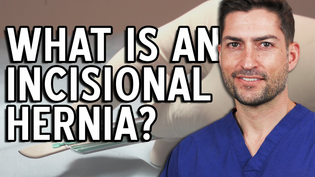 Incisional hernia: causes, symptoms and treatments