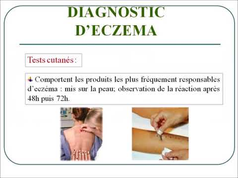 Le psoriasis frappe les ongles