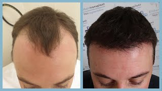 Hair transplant Turkey - costs and experiences - The TV report