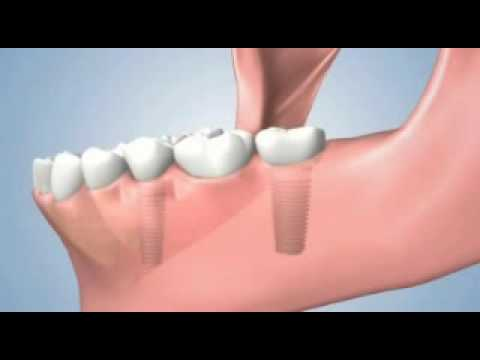 Several teeth treatment