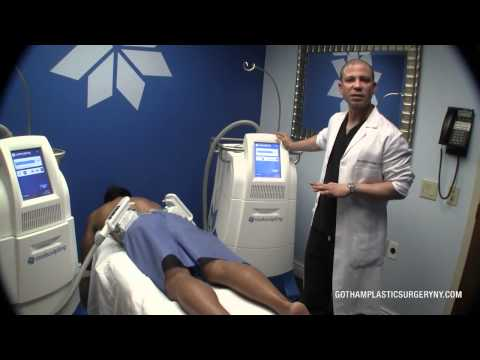 The Coolsculpting Procedure From Start To Finish At Gotham Plastic Surgery NYC