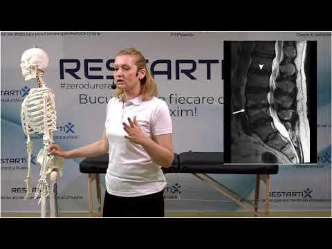 Tratarea artrozei bile medicale