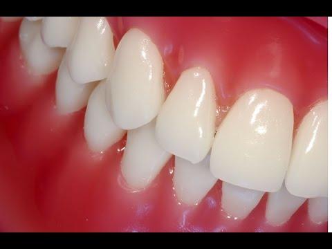 Копеечное Народное лечение десен - как укрепить десна и зубы -рецепт № 7
