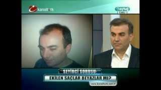 Doç.Dr.Hayati Akbaş-Saç Ekimi-Kanaltürk-Draytuğ