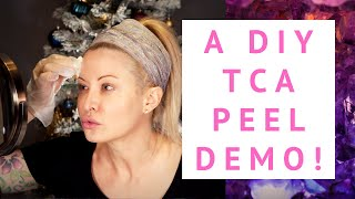 A DIY TCA Peel Tutorial: Repair Winter Ravaged Skin ASAP!