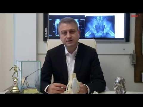 Kétoldalú boka osteoarthritis