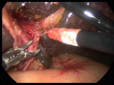 Laparoscopic Kasai Procedure