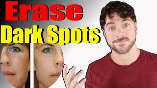 How To Get Rid Of Dark Skin Spots + Red Marks | 4 Essential Steps!