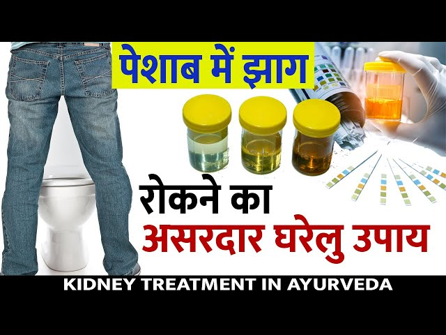 How to Stop Foamy Urine? | What is the First Sign of Kidney Disease | Proteinuria Problem