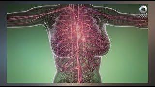 Diálogos en confianza (Salud) - Exista una enfermedad llamada Vasculitis Sistémica Primaria