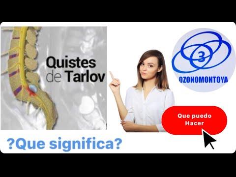 Inflamación de la cápsula de la articulación de los síntomas en las articulaciones de rodilla