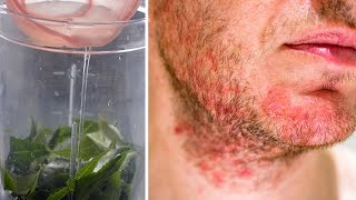 Get Rid Of Shaving Rash, Razor Burn on Face and Neck in an Hour – Natural Home Remedy