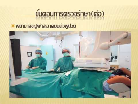 การรักษาของ SDA varices 3