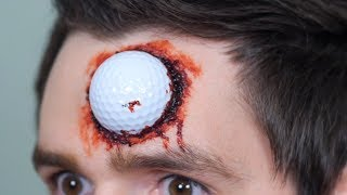 GOLF BALL LODGED IN HEAD!