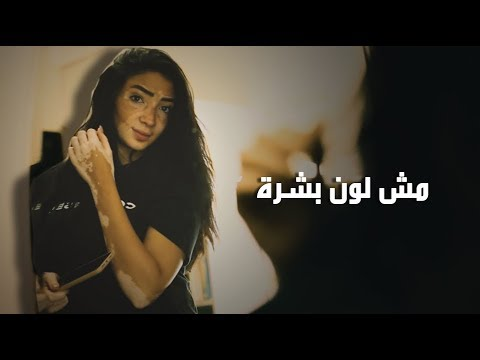 في اليوم العالمي لمرضى البهاق : لجينة صلاح .. النجاح مش لون بشرة