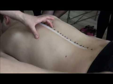 Wyciskanie niektóre pompy mięśniowej