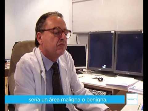 Complicaciones de la prostatitis aguda