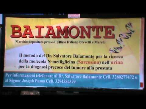 Video mungitura della prostata