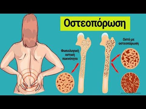 Ο διαβήτης τύπου 2 σακχαρώδη βάρος