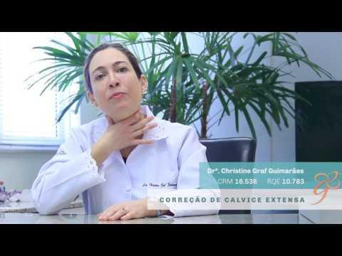 Correção de calvície extensa - Vídeos | Clínica GrafGuimarães