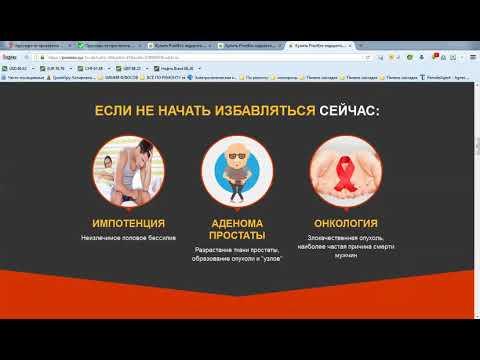 Quante fasi di adenoma prostatico
