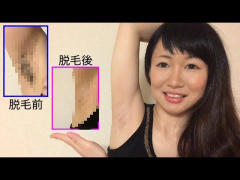 , title : '【リベンジ】ブラジリアンワックス~armpit hair removal〜