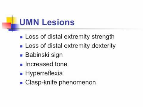 Video Anatomy Motor Exam: UMN Lesion Clinical Findings