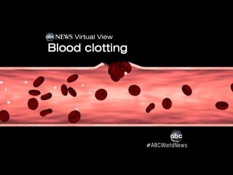 Nízký krevní tlak, které berou