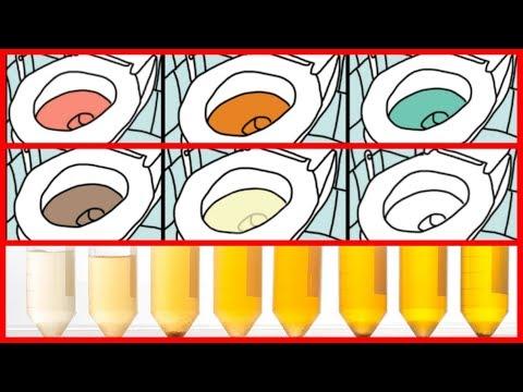 Was sollte der Blutzucker bei Diabetikern sein