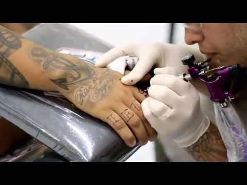 Borsite della mano infiammazione articolare