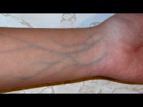 5 Signs Of  Poor Blood Circulation That You Shouldn't Ignore
